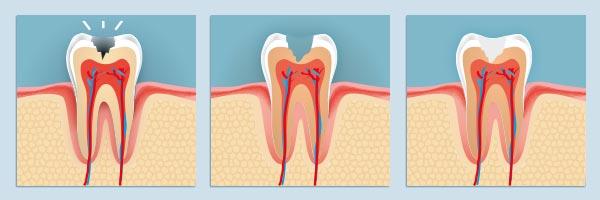caries-odontologia