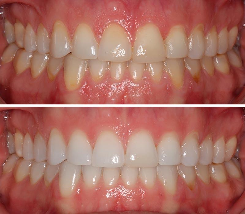 Mejora tu sonrisa con el blanqueamiento dental (caso real)