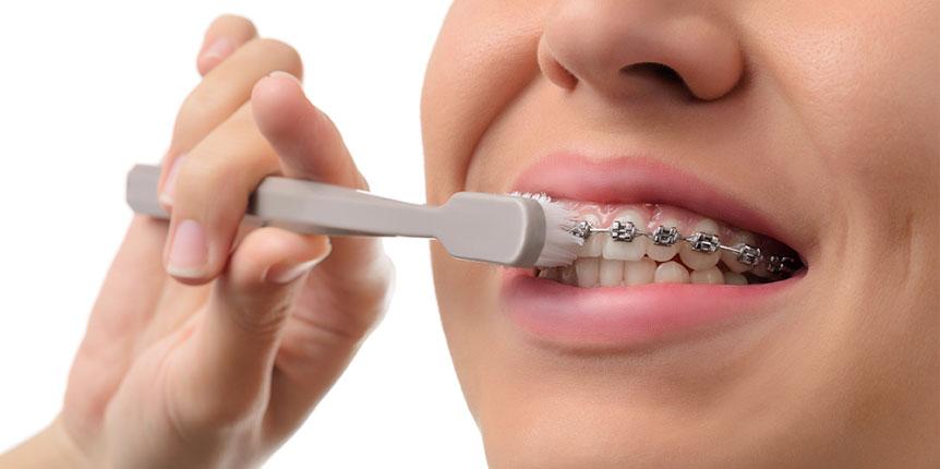 Cómo cepillarse los dientes con brackets