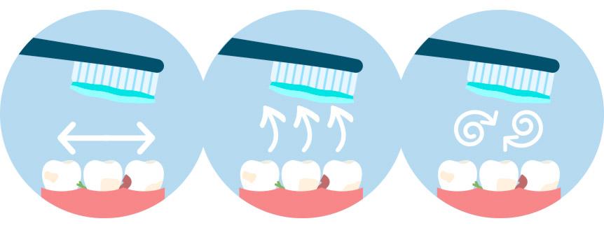 ¿Cuál es la forma correcta de cepillarse los dientes?
