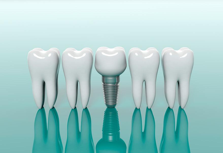 Cuidados esenciales para los implantes dentales