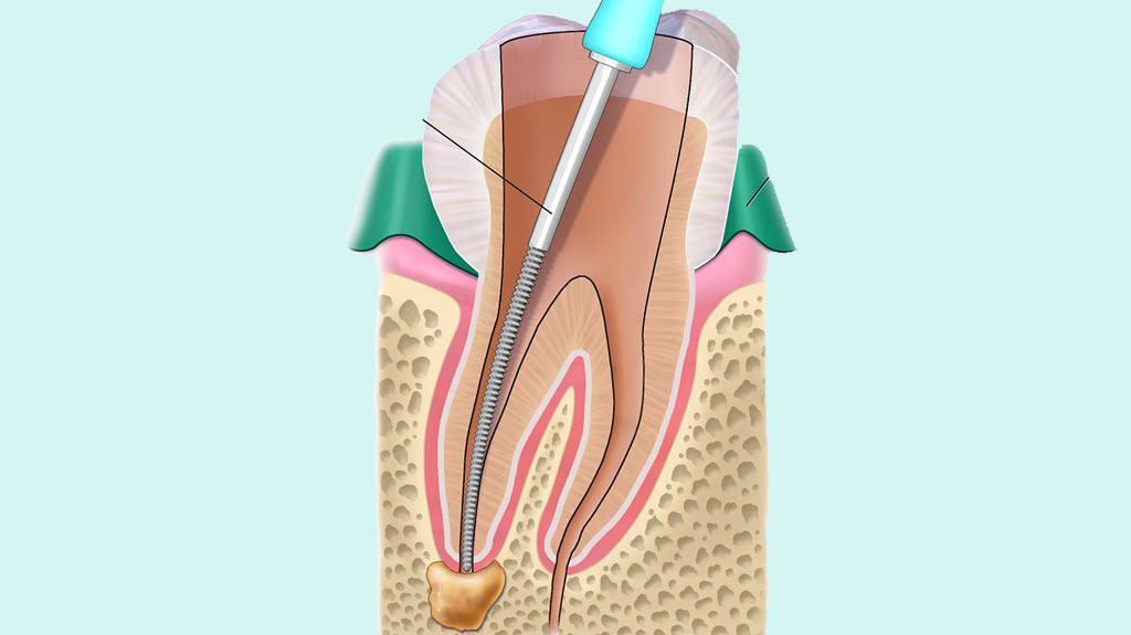 endodoncia-donostia