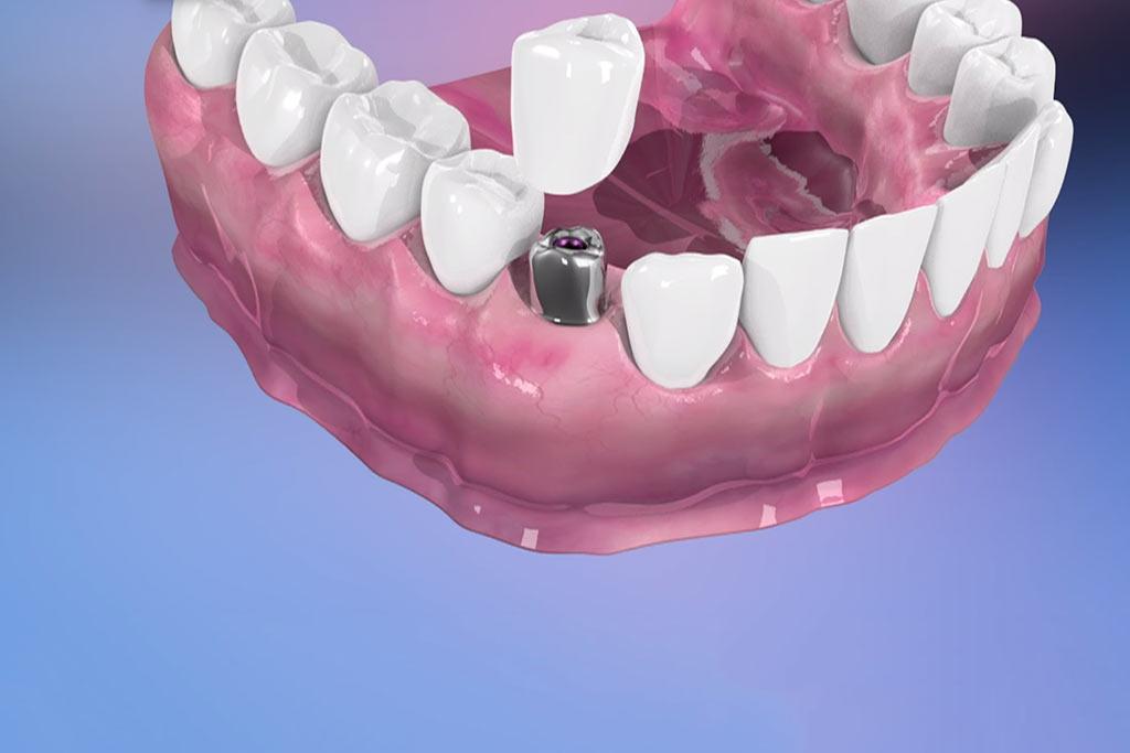 implantes-dentales-en-donostia