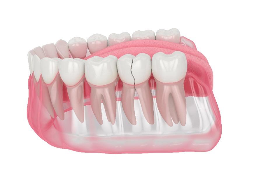 ¿Qué debo hacer si me he dado un golpe en un diente pero no se ha roto?