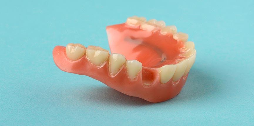 Pérdida de dientes: causas, consecuencias y solución
