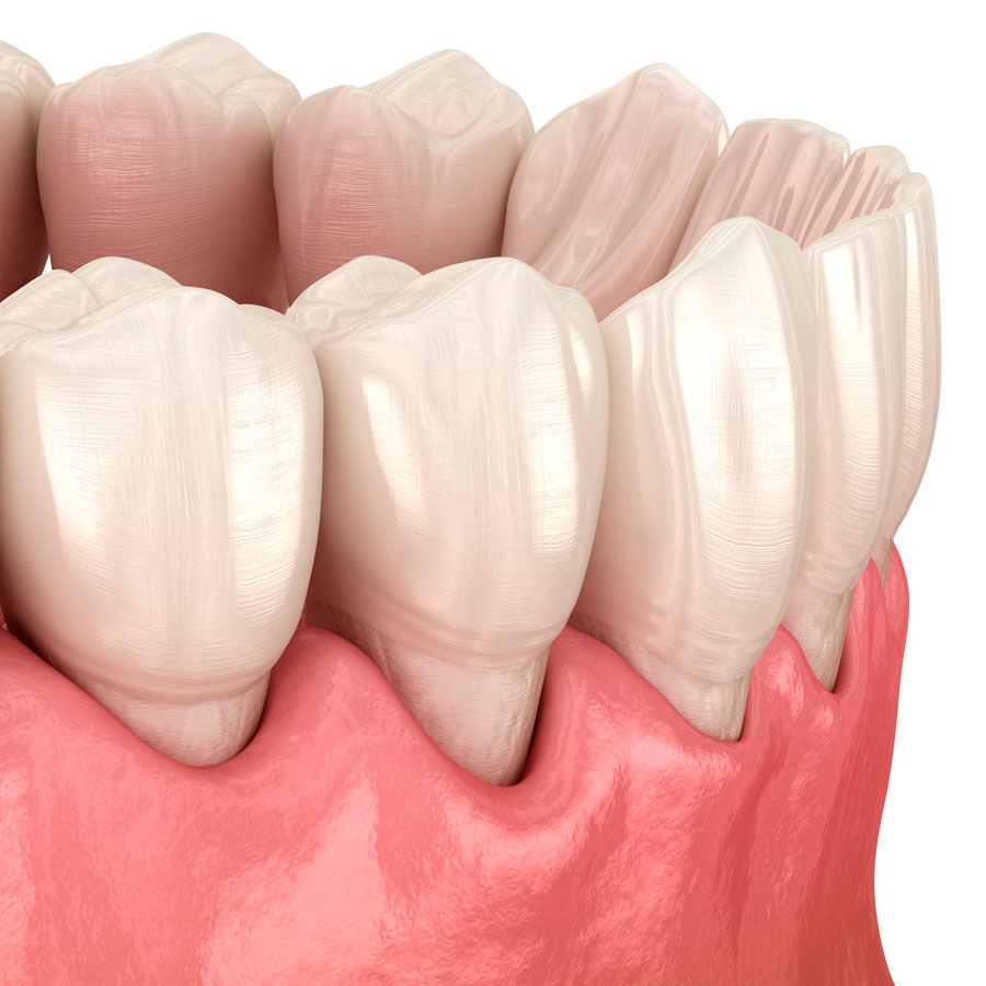 periodoncia-donostia